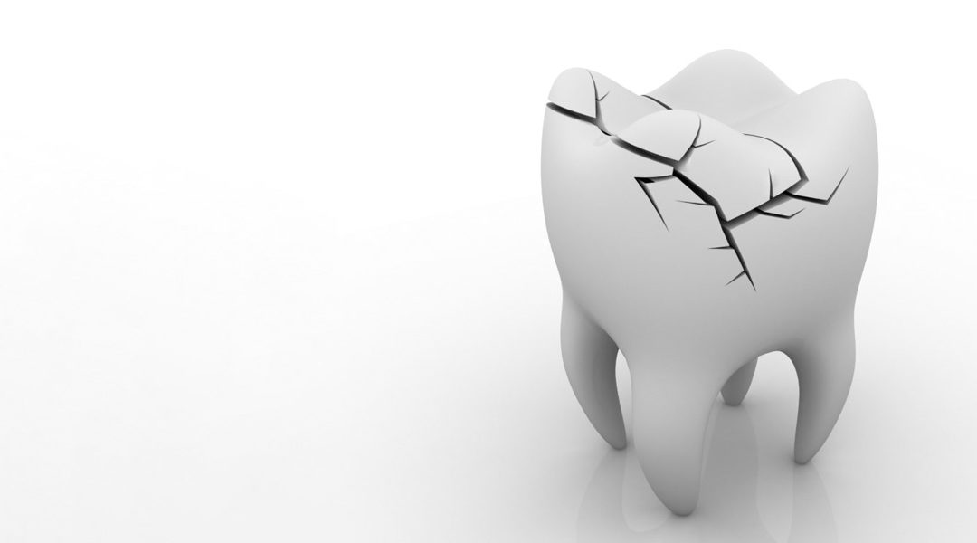 Damaged tooth? OUCH! First Aid Tips you need to know.