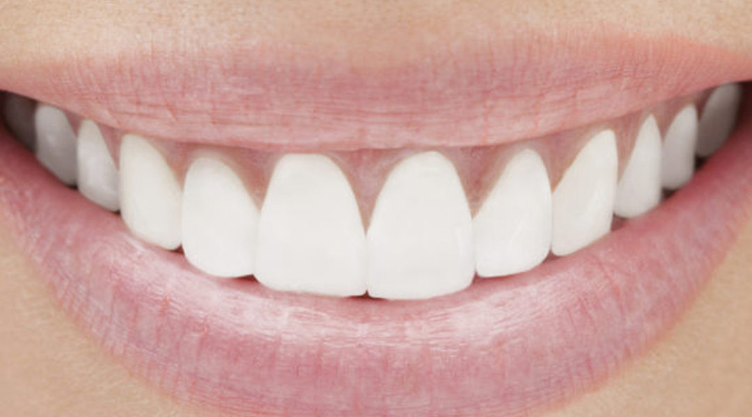 The Secret to a Youthful Smile is Closer Than You Think