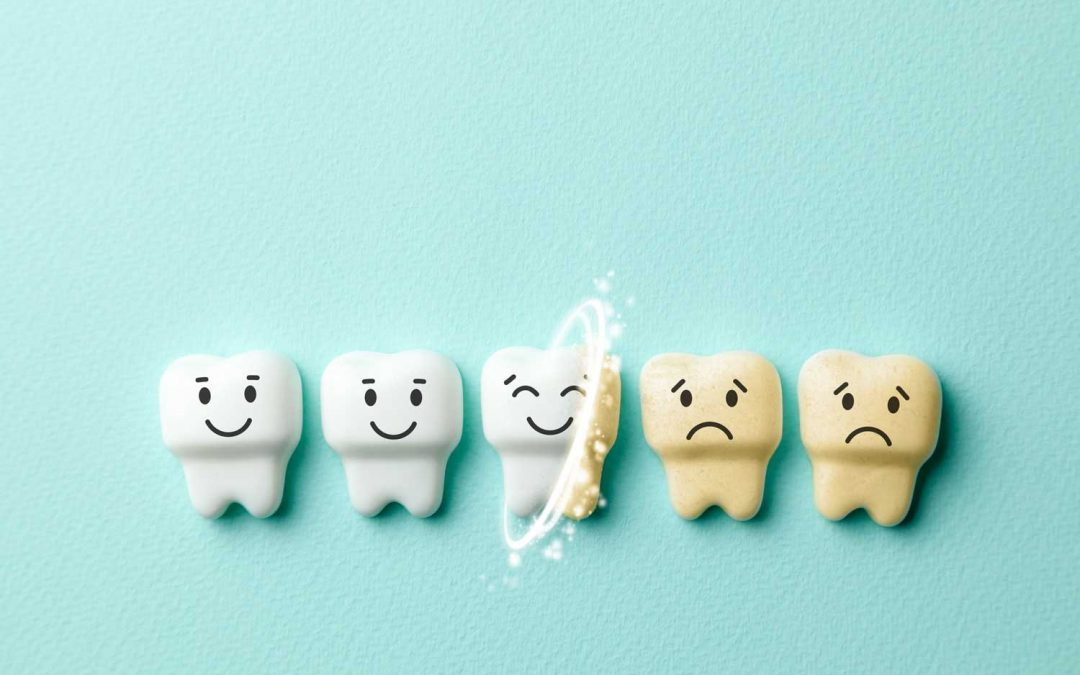 3 Ways to Improve The Whiteness of Your Teeth