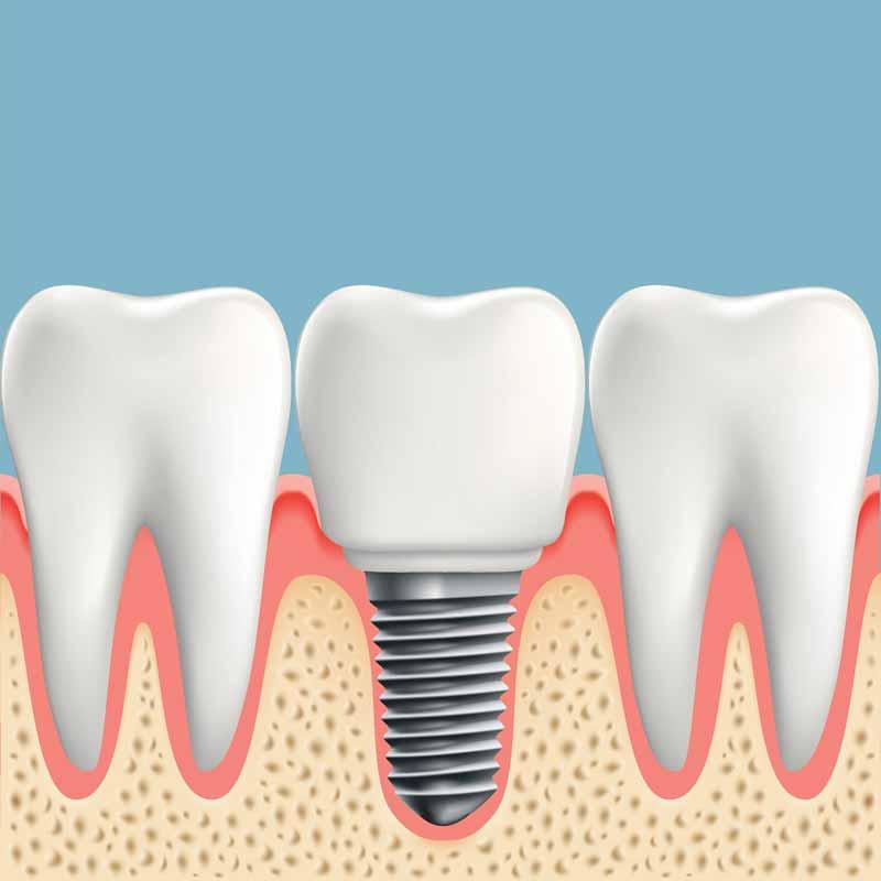 Dental Implants DentalFresh