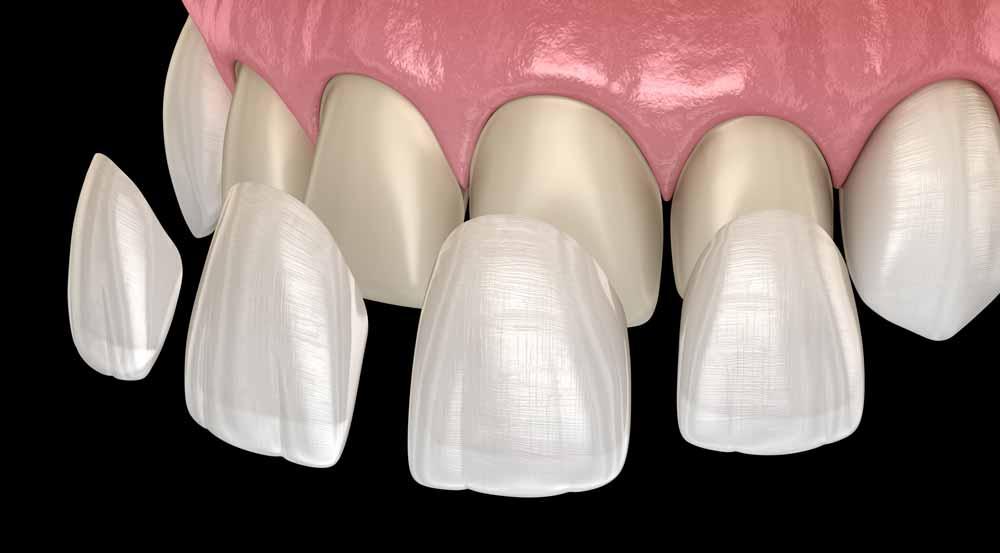 Veneers Dental Fresh